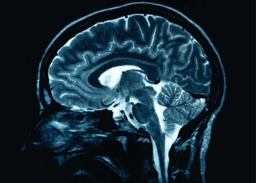 pictorial essay mri of fetal brain